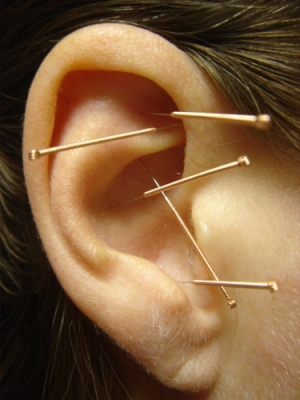 Stop Smoking Acupuncture - HealthWorks Regina