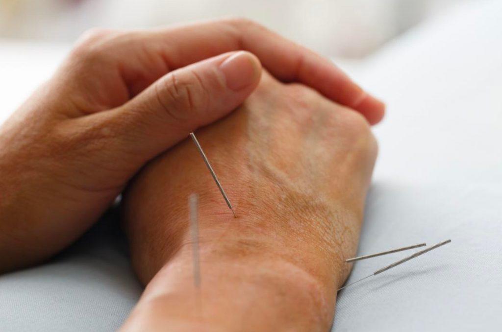 Acupuncture Regina Sk