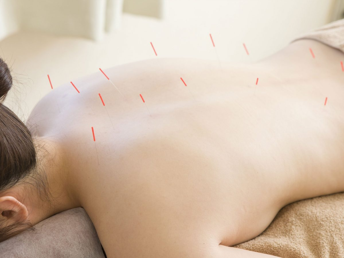 Medical Acupuncture - Acupuncture Regina Sk - HealthWorks Regina