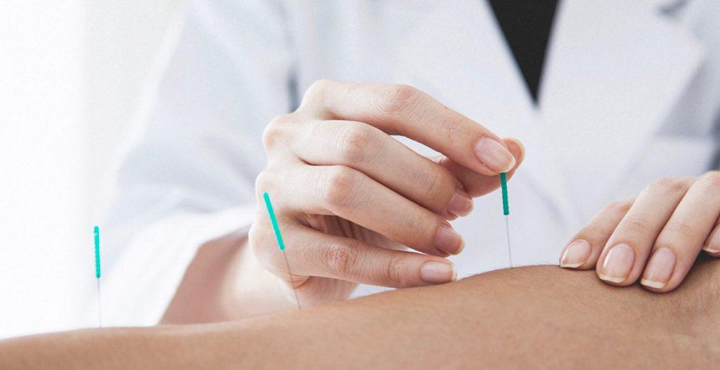 Chinese Acupuncture - Acupuncture Regina - HealthWorks Regina