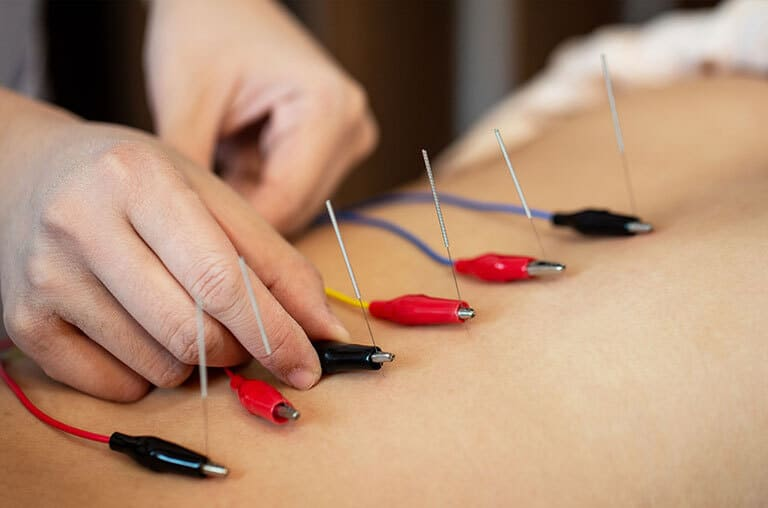 Acupuncture Regina Sk - HealthWorks Regina
